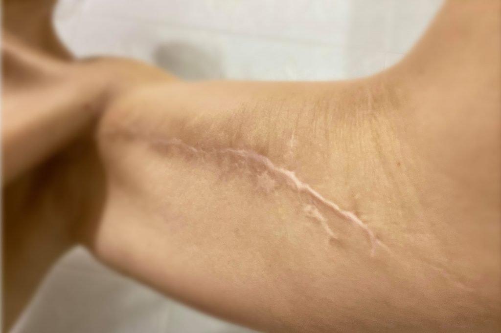 tatuaggio su cicatrice
